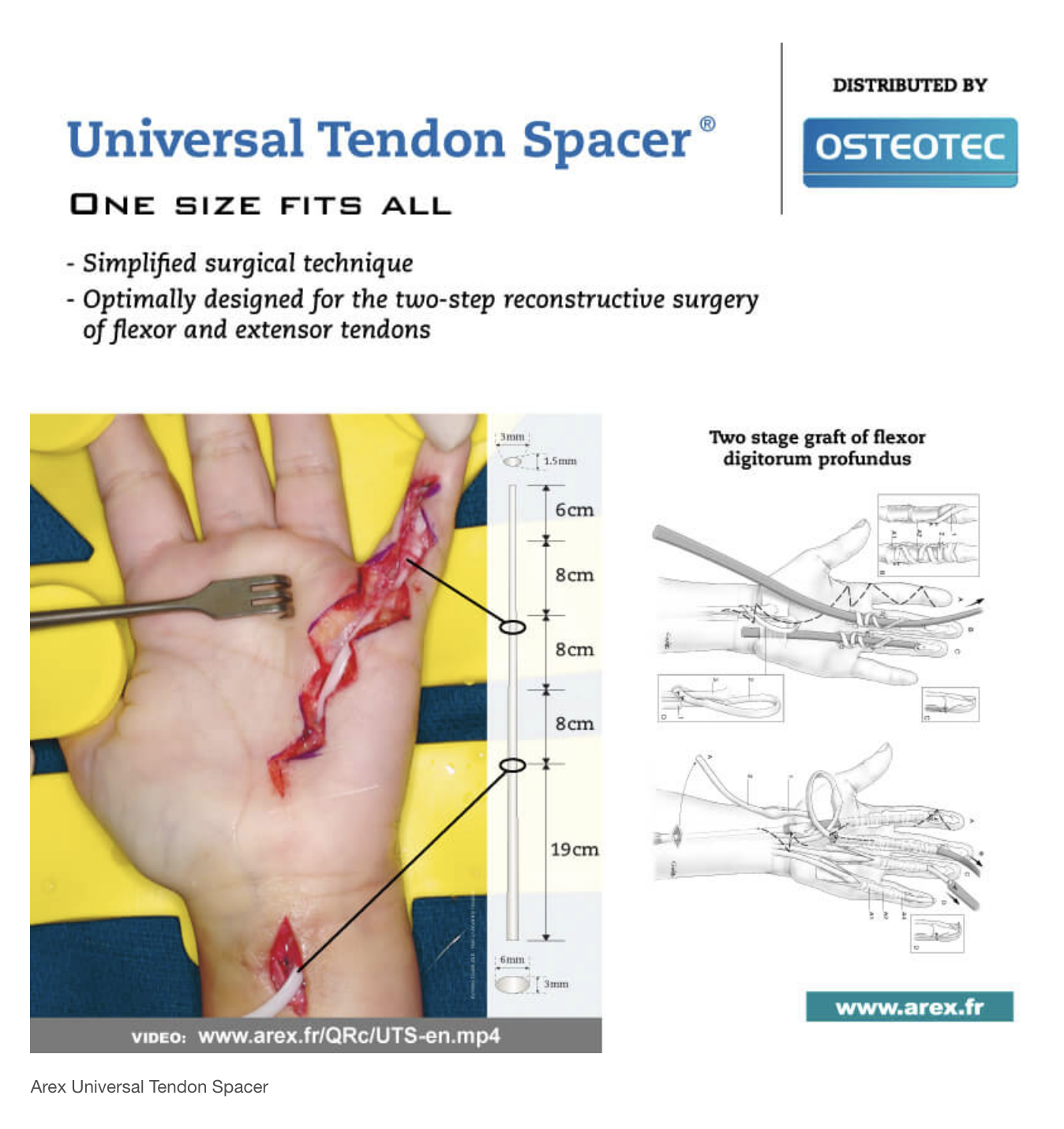 Arex Universal Tendon Spacer