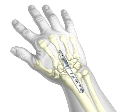 TriMed™-Total-Wrist-Fusion-Plate™